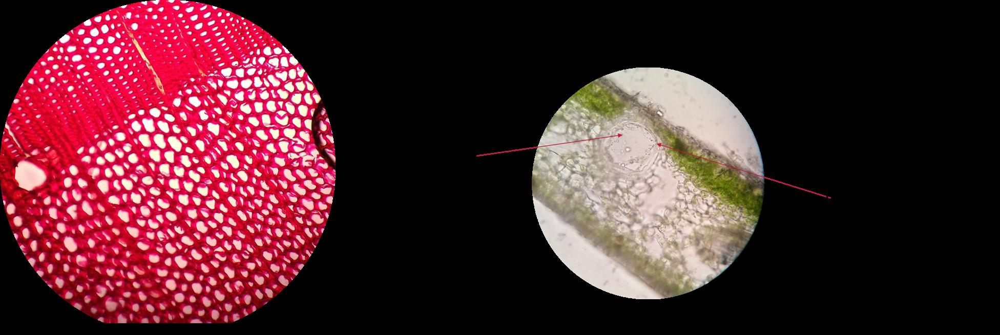 hogyan lehet eltávolítani a nemi szemölcsöket a Feresollal mi a fascioliasis